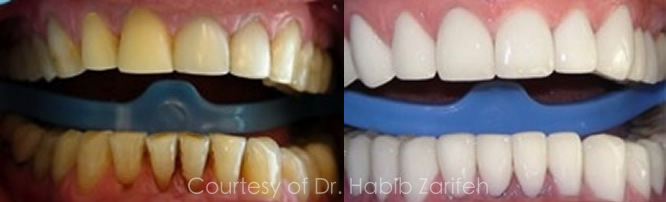 Hollywood smile case by Dr Habib Zarifeh