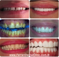 Hollywood smile Before & After