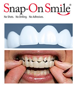 snap-on smile